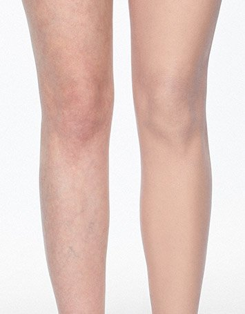 Leg And Body Makeup Dermablend